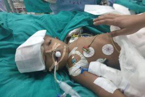 جراحة طبية تفصل توأمين ملتصقين من الرأس في الهند