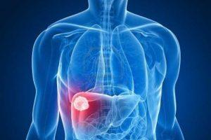 علماء بريطانيون يتوصلون إلى «جين رئيسي» لعلاج أمراض الكبد