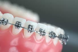باحثون سعوديون يبتكرون تقنية لتقويم الأسنان بالضوء