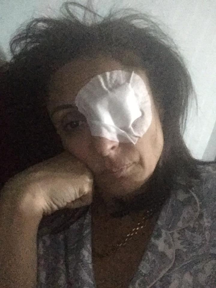 منى عراقي تتعرض لإصابة شديدة في عينها